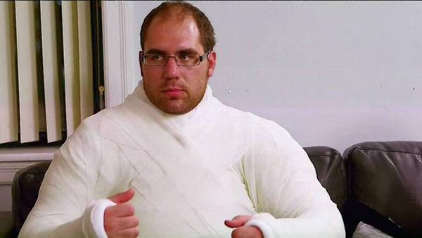 石膏衣服!美国男子患石膏癖 随时随地身着石膏衣服